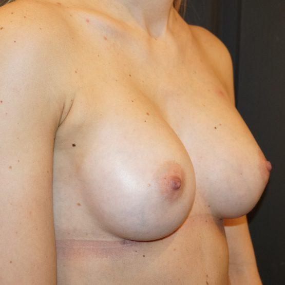 efter billede brystimplantat
