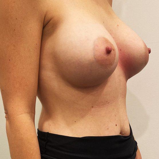 efter billede brystoperation