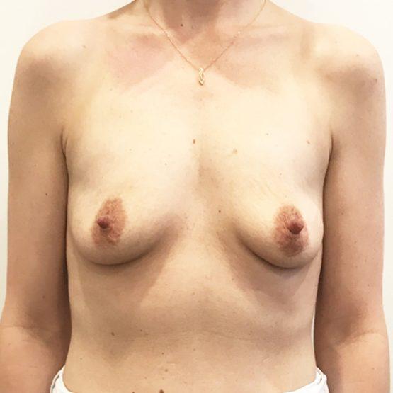 før billede brystforstørrelse