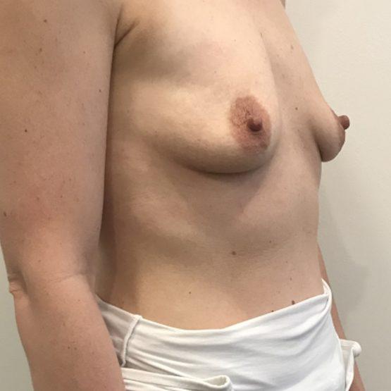 før billede brystoperation