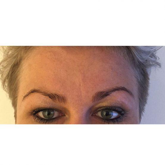 Øjenbrynsløft efter