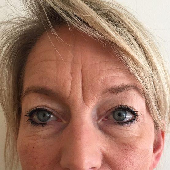 øjenbrynsløft 1 før