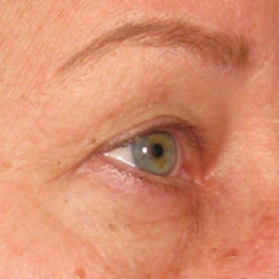 Ultherapy øjenbrynsløft efter
