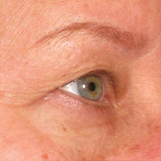Ultherapy øjenbrynsløft før