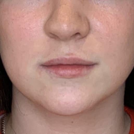 Læbeforstørrelse 1 før