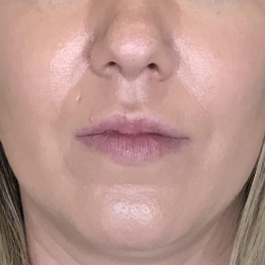 Læbeforstørrelse 2 efter