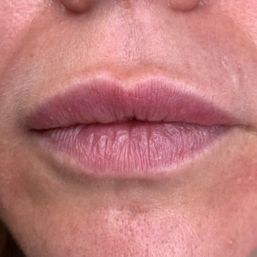 Læbeforstørrelse 3 før