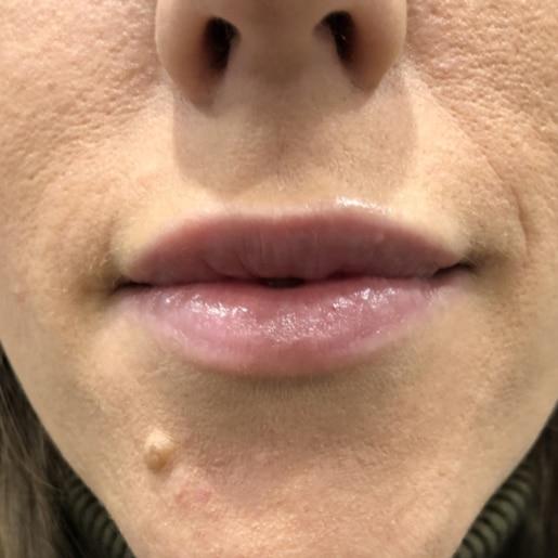 Læbeforstørrelse 4 efter