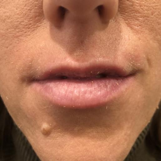 Læbeforstørrelse 4 før