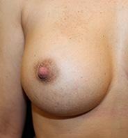 Indadvendte brystvorter efter 1