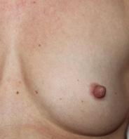 Indadvendte brystvorter efter 2