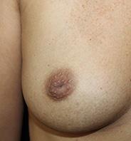 Indadvendte brystvorter før 1