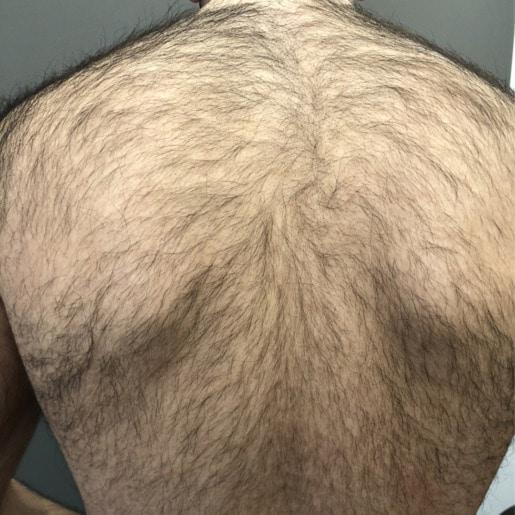 Permanent hårfjerning ryg før